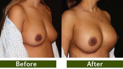breast-3