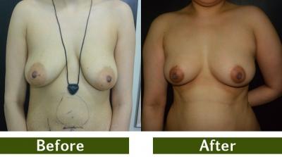 breast-4