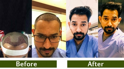 hair-transplant-12