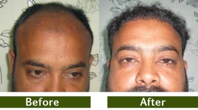 hair-transplant-7