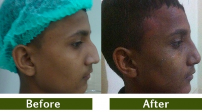rhinoplasty-3