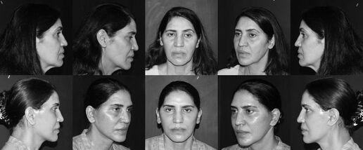 best cosmetic and plastic surgeon in karachi pakistan
